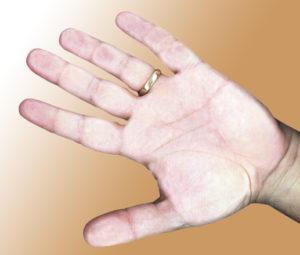 Bolesti kloubů, otoky rukou a nohou